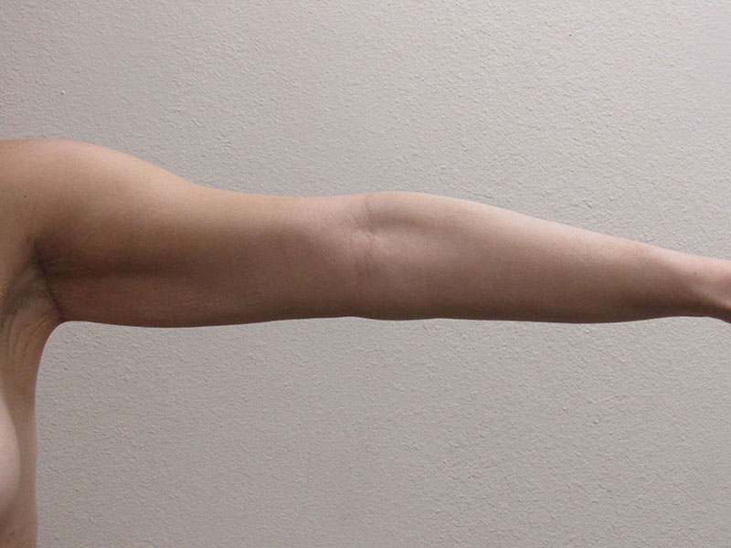 Arm Lift Procedures Remedy Saggy Arms